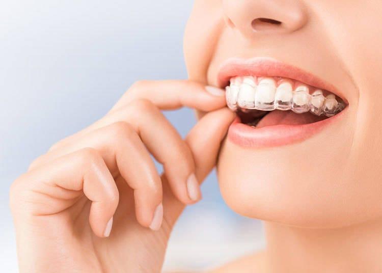 日本人の歯、ぶっちゃけどう思ってる?